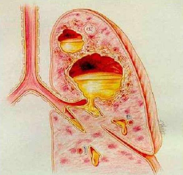 áp xe phổi là gì