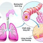 Bệnh phổi tắc nghẽn mạn tính (COPD) là gì? Có chữa khỏi được không?