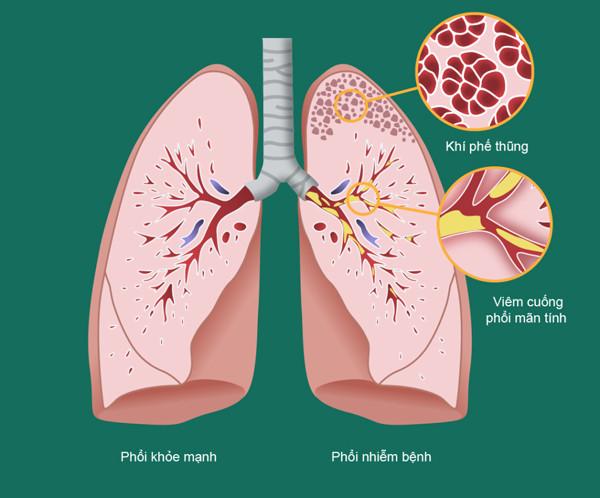 hình ảnh bệnh phổi tắc nghẽn