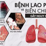 Bệnh lao phổi là gì? Có nguy hiểm không và có chữa được không?