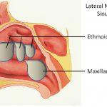 Polyp mũi là gì? Bệnh có nguy hiểm không theo ý kiến chuyên gia