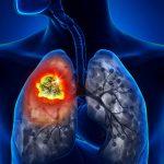 Dấu hiệu ung thư phổi giai đoạn đầu và giai đoạn cuối