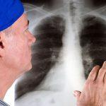 Bệnh xơ phổi có nguy hiểm không và có chữa được không?