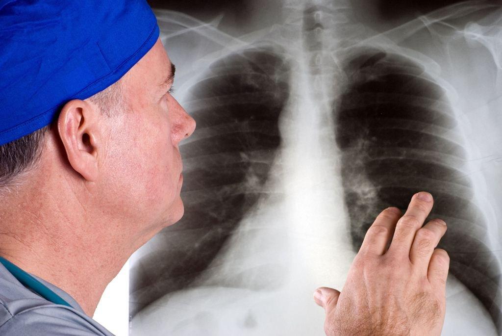bệnh xơ phổi